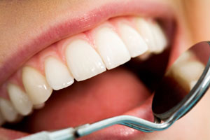 dental cleaning Dental Cleaning