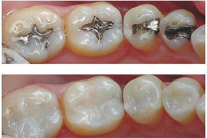 dental fillings Fillings